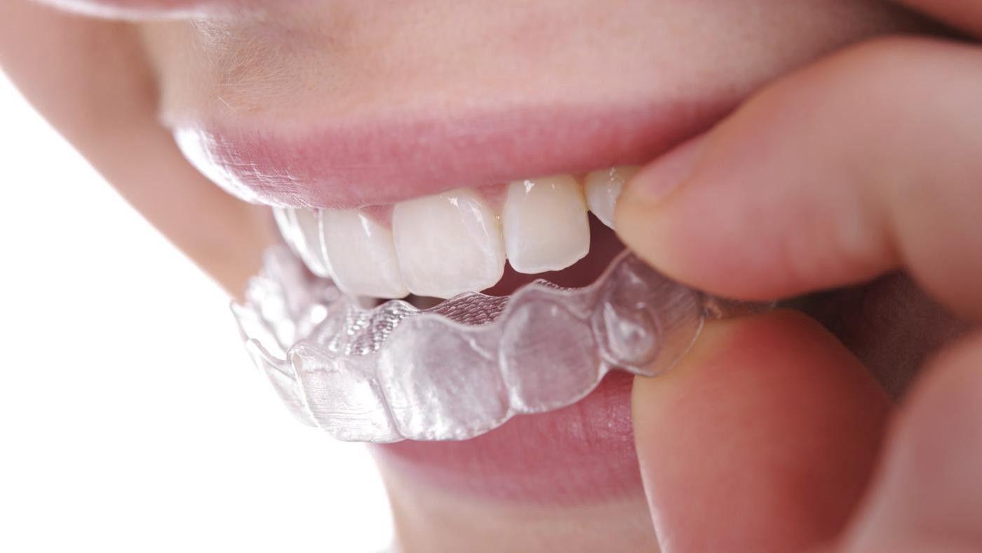 The Checklist Before Getting Dental Braces Invisalign Dental