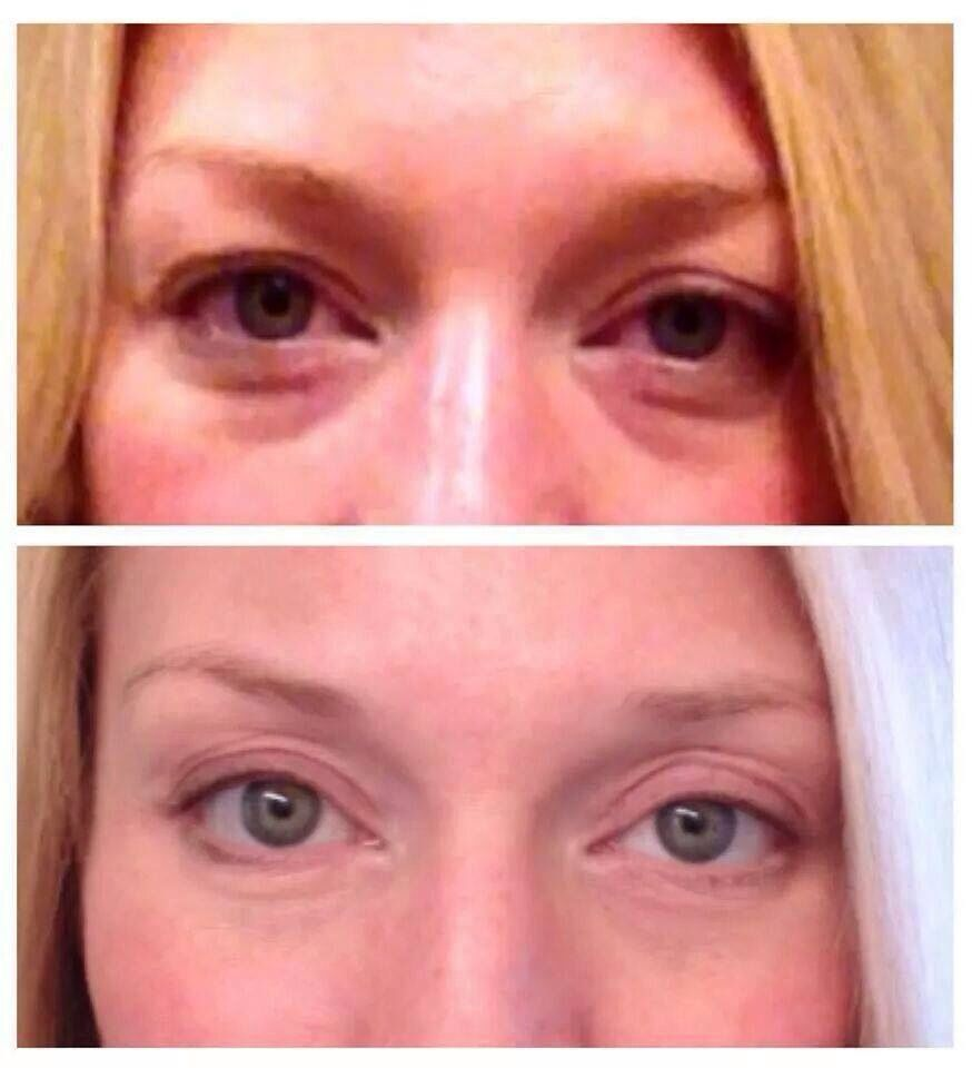Redefine Multi Function Eye Cream Before And After The Best