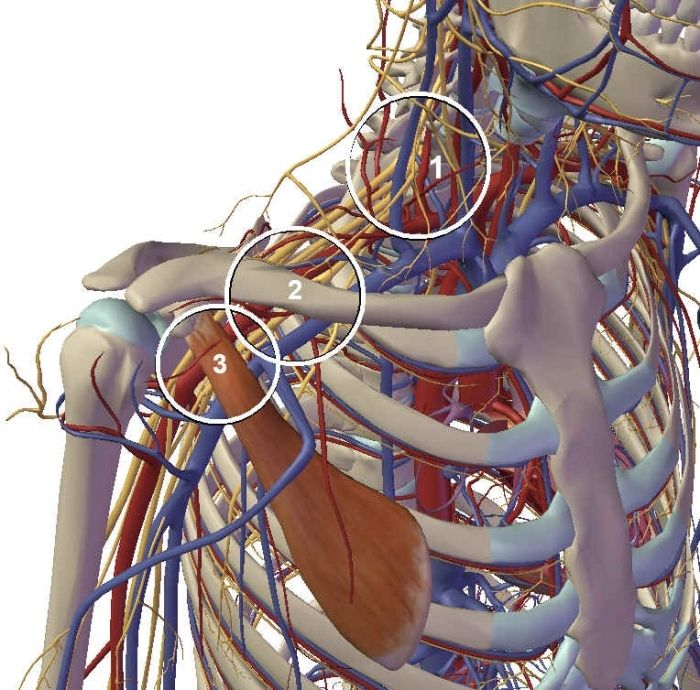 Understanding Thoracic Outlet Syndrome - Anatomy & Physiotherapy ...
