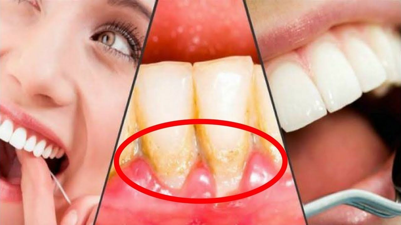 How to remove dental plaque in 5 minutes naturally