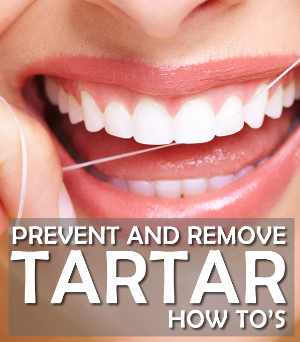 How To Prevent And Remove Tartar Buildups