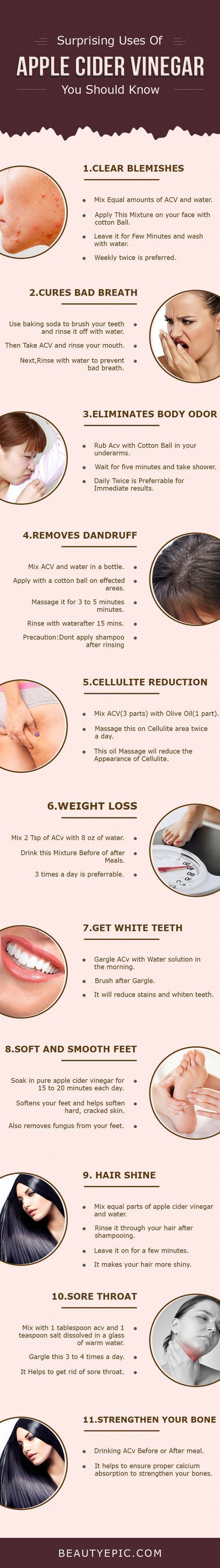 Surprising Uses and Benifits of Apple Cider Vinegar You Should Know Apple cider vinegar is off great use for beauty, health and also at e it every day for various purposes. Here are some uses of apple cider vinegarApple cider vinegar is off great use for beauty, health and also at e it every day for various purposes. Here are some uses of apple cider vinegar Uses and Benifits of Apple Cider Vinegar You Should Know Apple cider vinegar is off great use for beauty, health and also at e it every day for various purposes. Here are some uses of apple cider vinegarApple cider vinegar is off great use for beauty, health and also at e it every day for various purposes. Here are some uses of apple cider vinegarS...