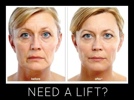 Better Together! Botox and Juvederm  Like MAJIC for your