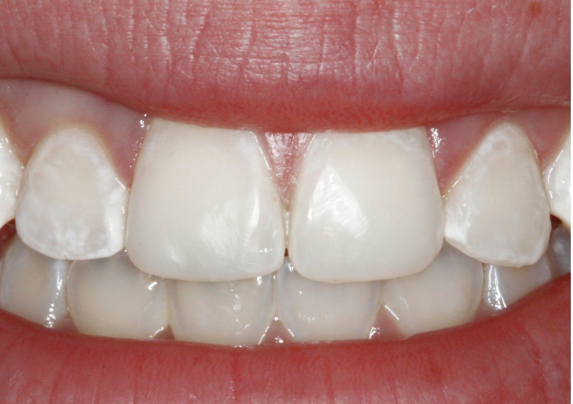 Colgate teeth whitening teeth whitening products pinterest teeth - Explore Natural Teeth Whitening Wisdom Teeth And More