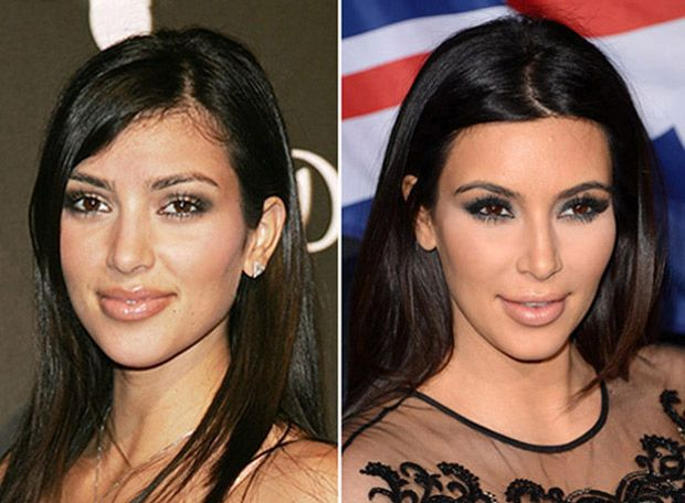 Top 10 Best Celebrity Nose Jobs Featuring Kim Kardashian Ashley