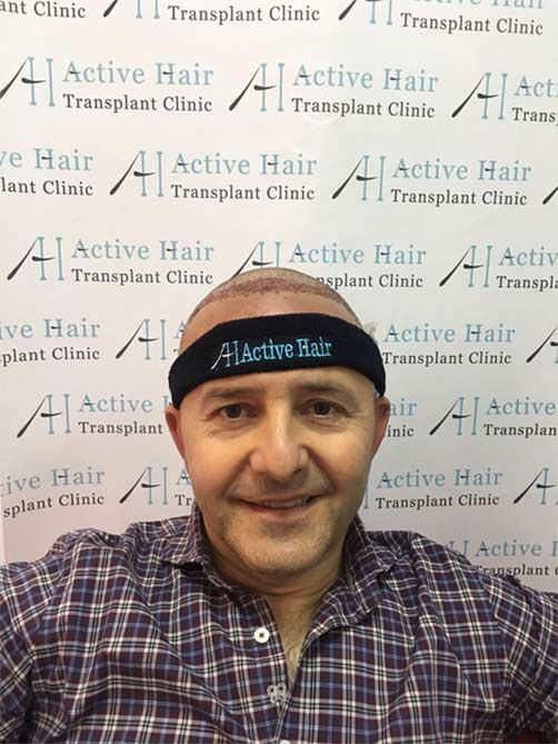 Pin di Active Hair Clinic Turkey su https://www ...