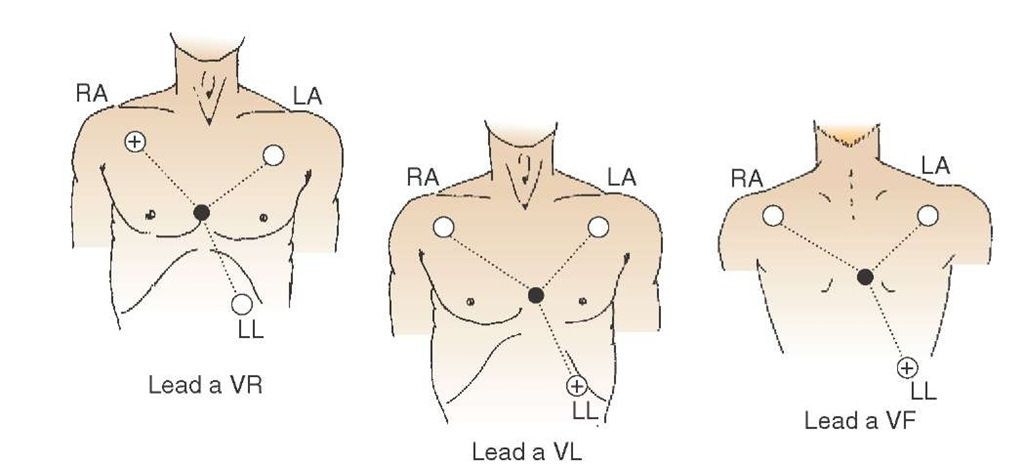 Augmented lead placement and the relationship of augmented limb leads to the standard limb leads ...