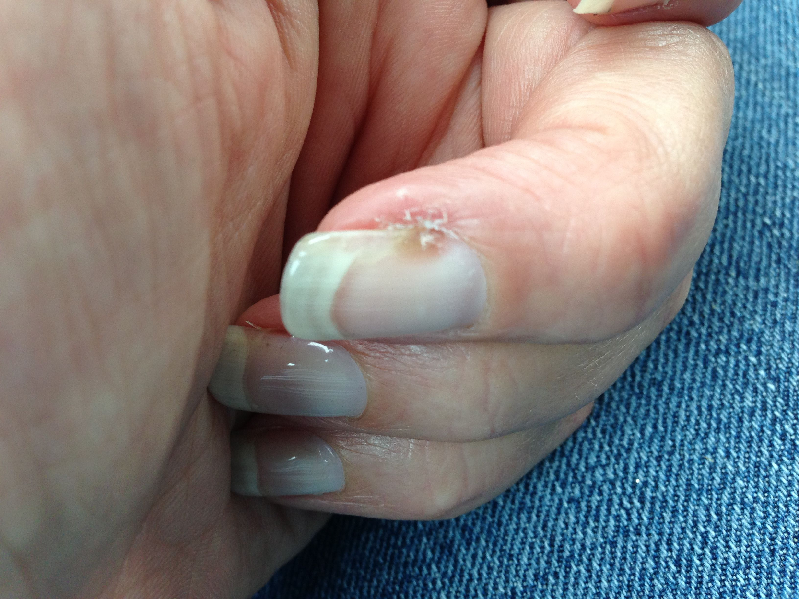 Nail pulling away from the nail bed. A symptom of psoriatic ...