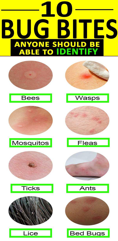 10 BUGBITES anyone should be able to IDENTIFY Bug bites