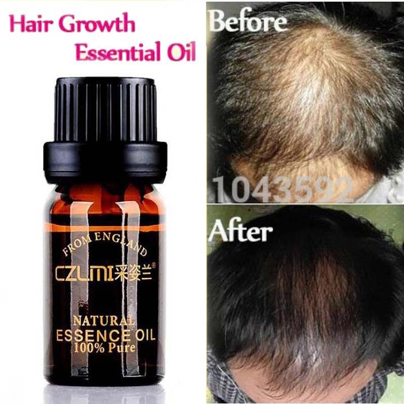 Hair Loss Products Natural With No Side Effects Grow Hair Faster