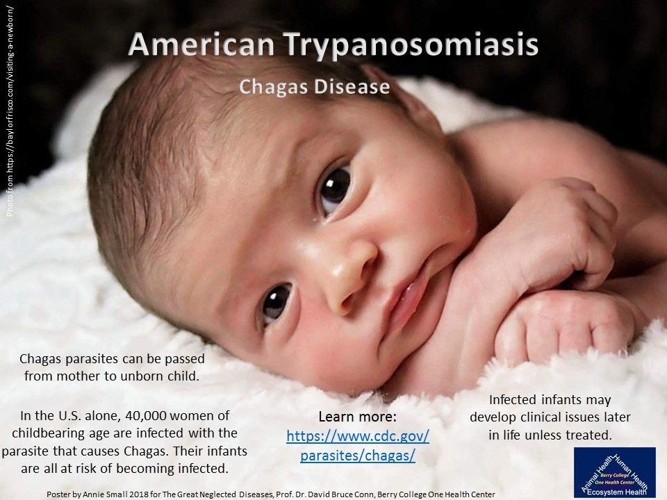 Chagas Disease or American Trypanosomiasis is a ...