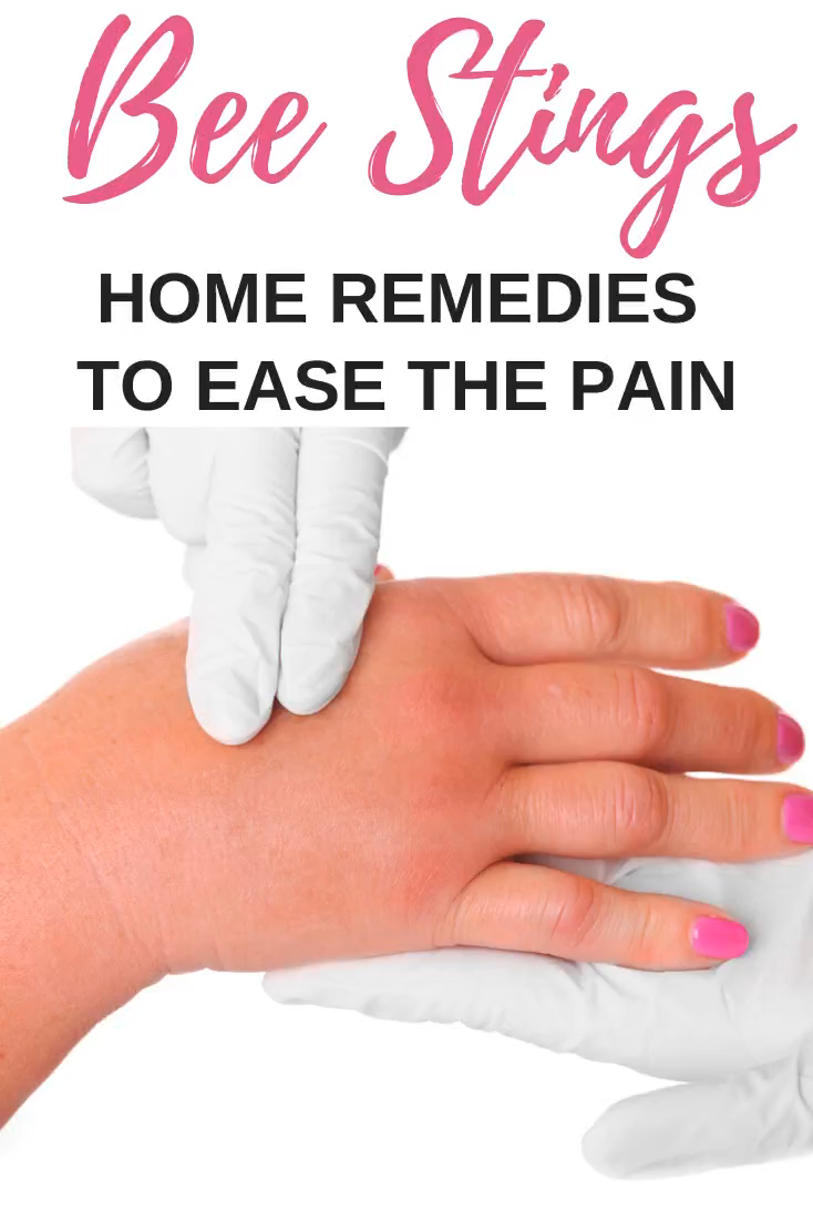 Bee Sting Home Remedies