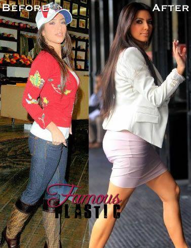 kardashian after Kim butt before