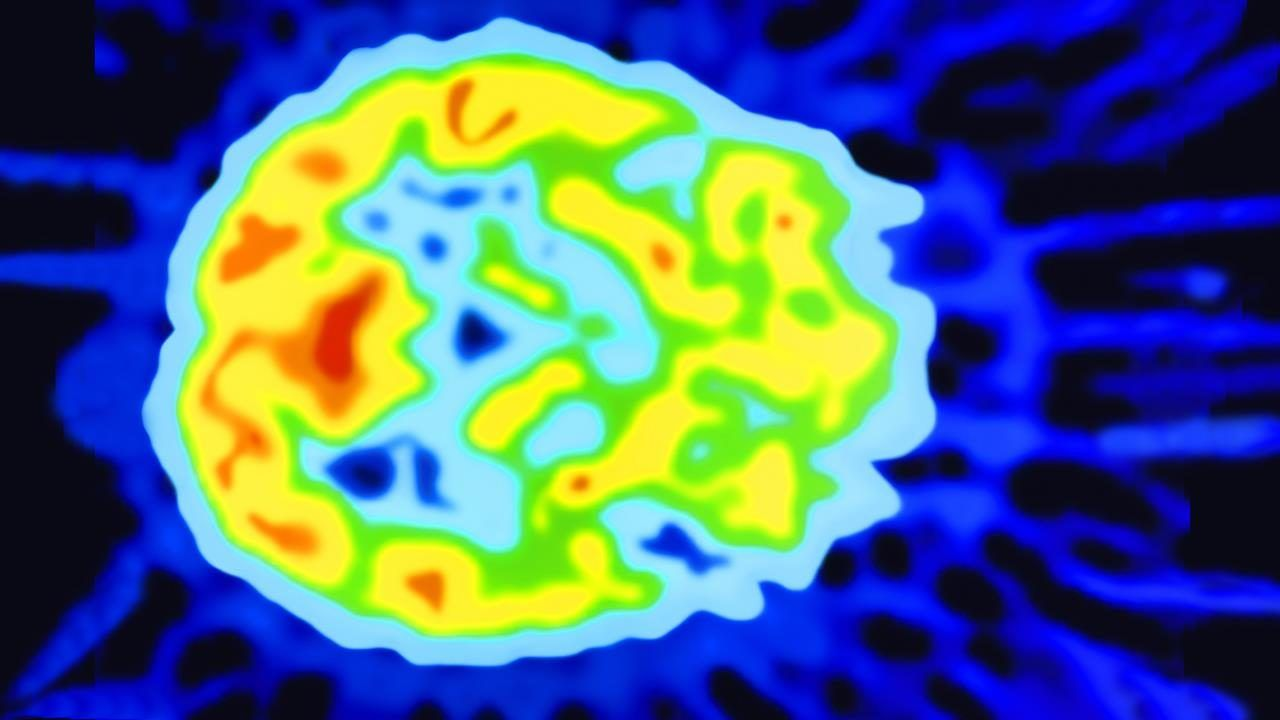 Photo of Will you wake from a vegetative state? New test could tell