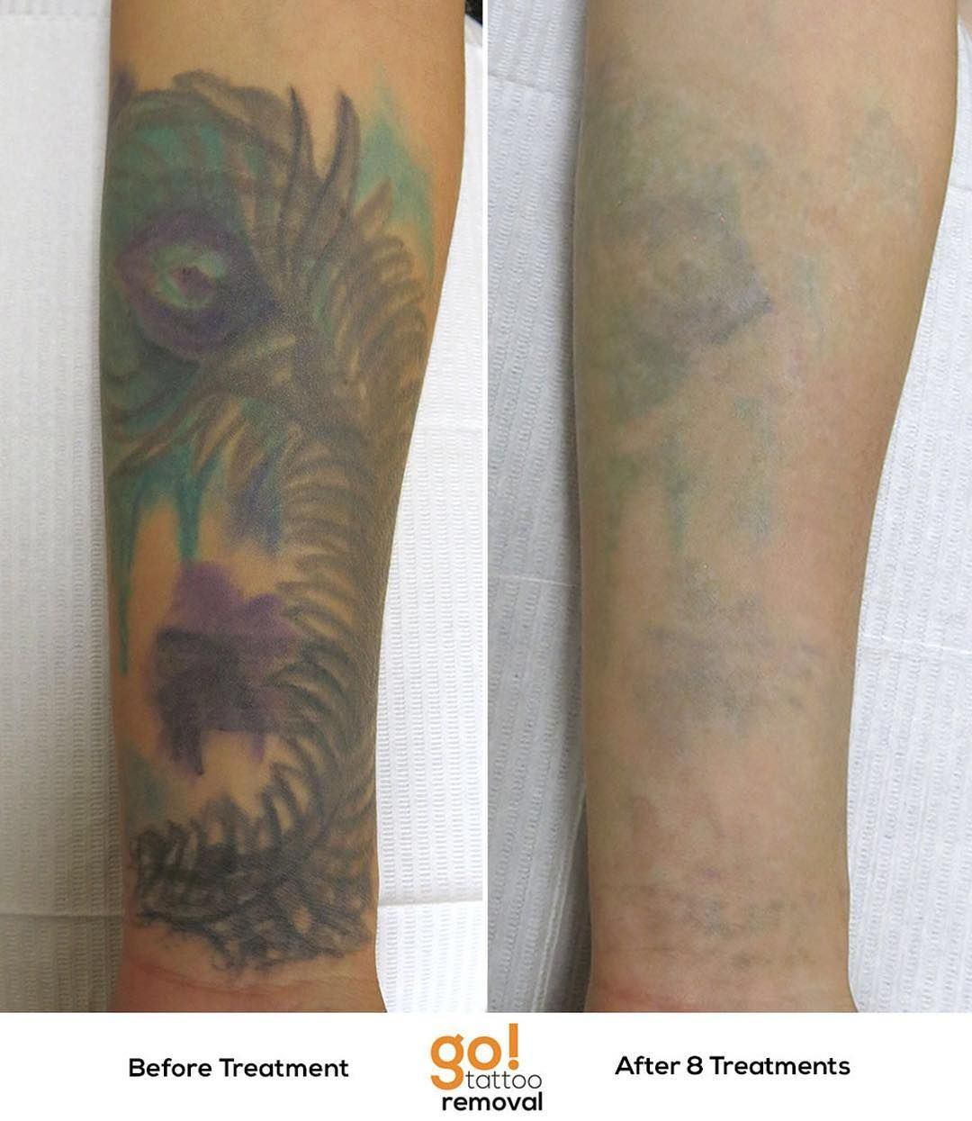 Huge progress on this somewhat stubborn tattoo coverup