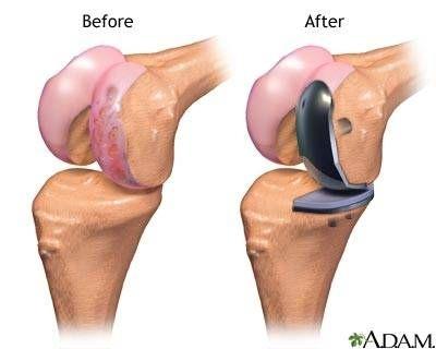 Partial Knee Replacement >> Partial Knee Replacement Surgery Partial Knee Replacement Knee