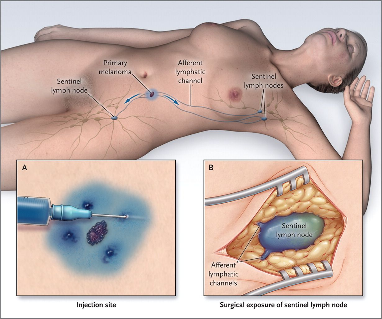 Lymph Node Removal in Early-Stage Breast Cancer -