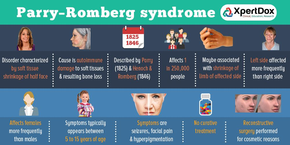Parry–Romberg syndrome is a rare disease characterized by