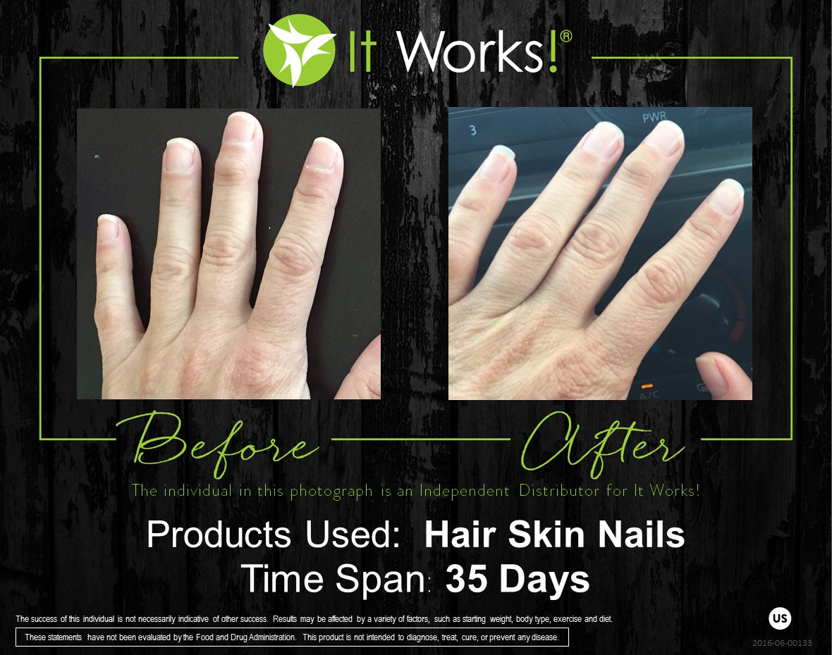 Be A More Radiant Youthful Looking You With Support For Stronger Nails Softer And Smoother Skin And Shine Worthy Hai Hair Skin Nails Hair Skin Smoother Skin