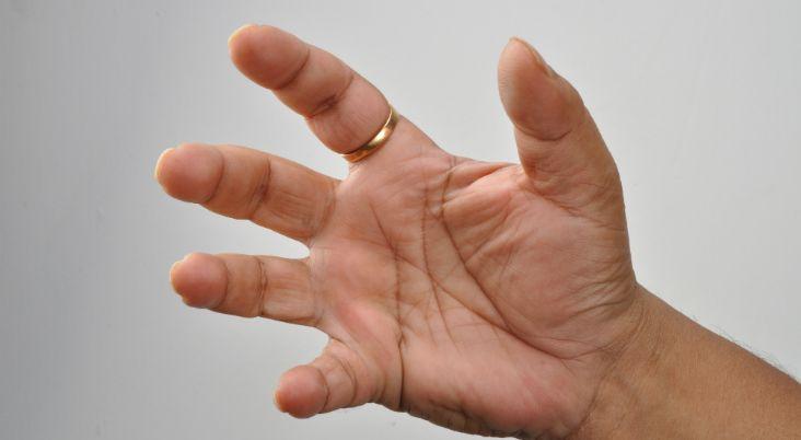 Carpal Tunnel vs. Trigger Finger: Compare the Symptoms and ...