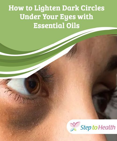 How to Lighten Dark Circles Under Your Eyes with Essential ...