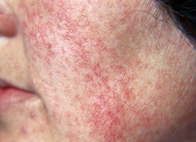 Speaking, recommend facial spider veins seattle remarkable, amusing