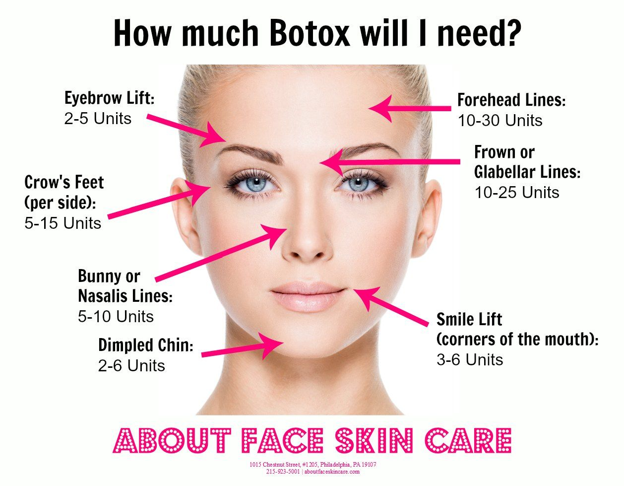the average amount of botox units needed per facial area botox