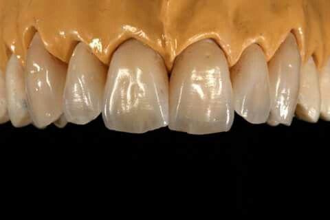Arcada superior | dental advanced | Pinterest | Dientes, Dental y ...
