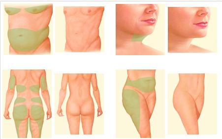 FULL BODY LIPOSUCTION CONTOURING PLASTIC SURGERY   Body ...