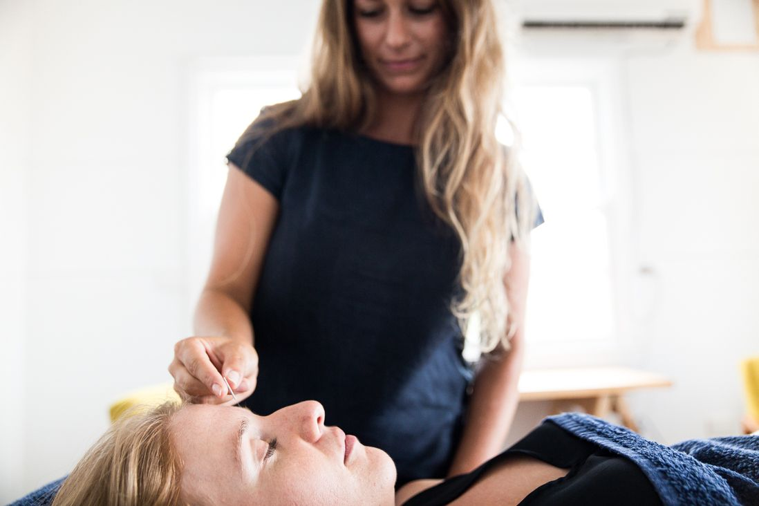 Pin on Acupuncture Therapy