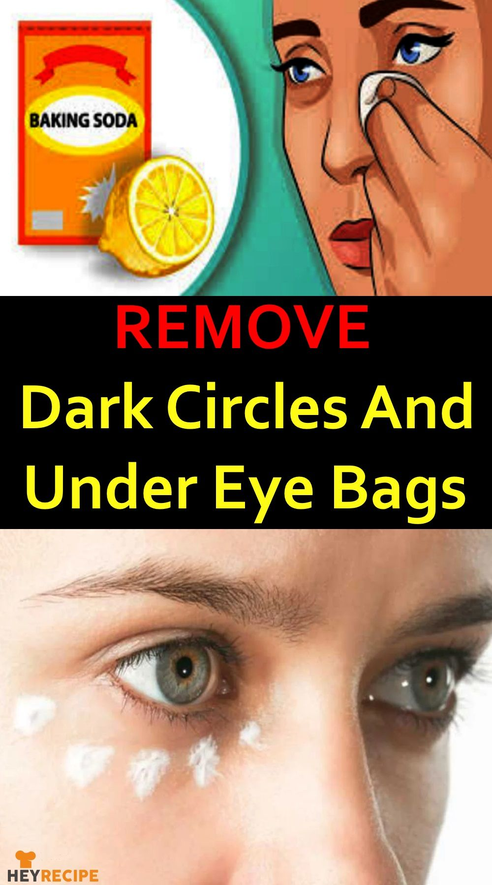 Dark circles under the eyes are a not unusual problem for ...