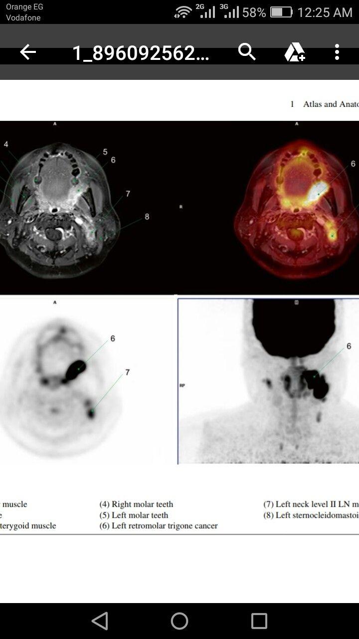 left retromolar trigone cancer. | MR/Pet | Pinterest