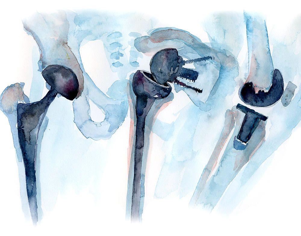Impresion De Acuarela Ortopedica Arte De Cirugia Ortopedica