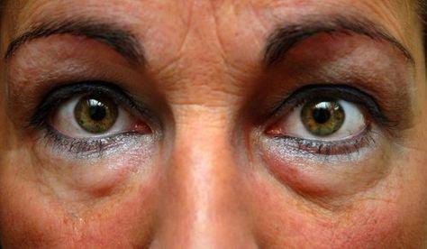 Ojos Hinchados Remedios Caseros Para Evitar La Inflamación De Los Ojos Hinchazón Debajo De Los Ojos Bolsas De Ojos Ojos Hinchados