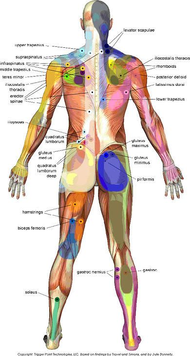 trigger point map back massage therapy, trigger points Back Massage Diagram