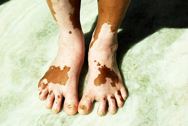 How To Get Rid Of Vitiligo Permanently-How To Tell If You Have Vitiligo