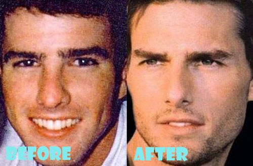 Tom Cruise Plastic Surgery Before and After | Nose does make a