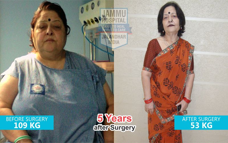 Top Bariatric Surgery Hospital In India Best Weight Loss Surgeon