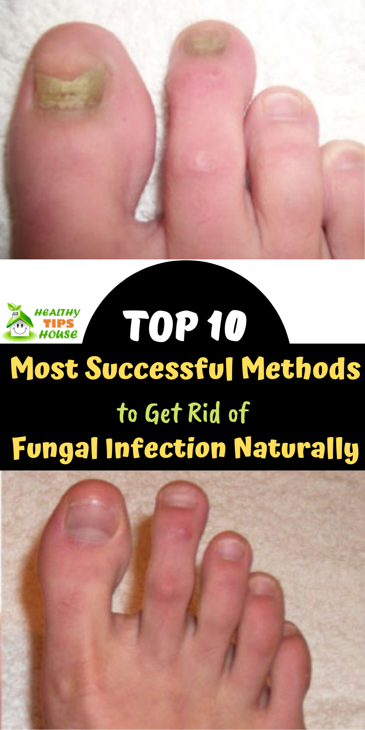 Top 10 Most Successful Methods To Get Rid Of Fungal Infection Naturally Foot Fungus Remedies Fungal Infection Skin Fungal Infection