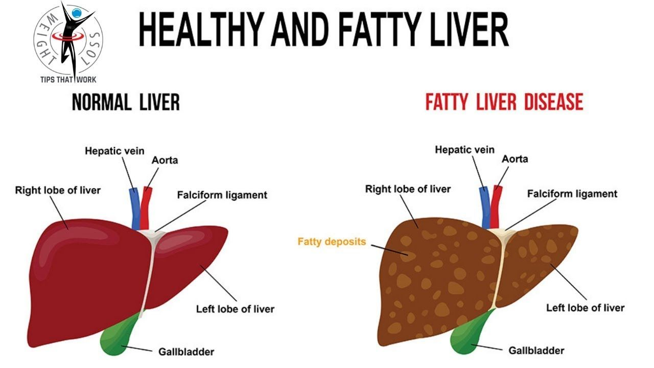 Weight loss due to fatty liver