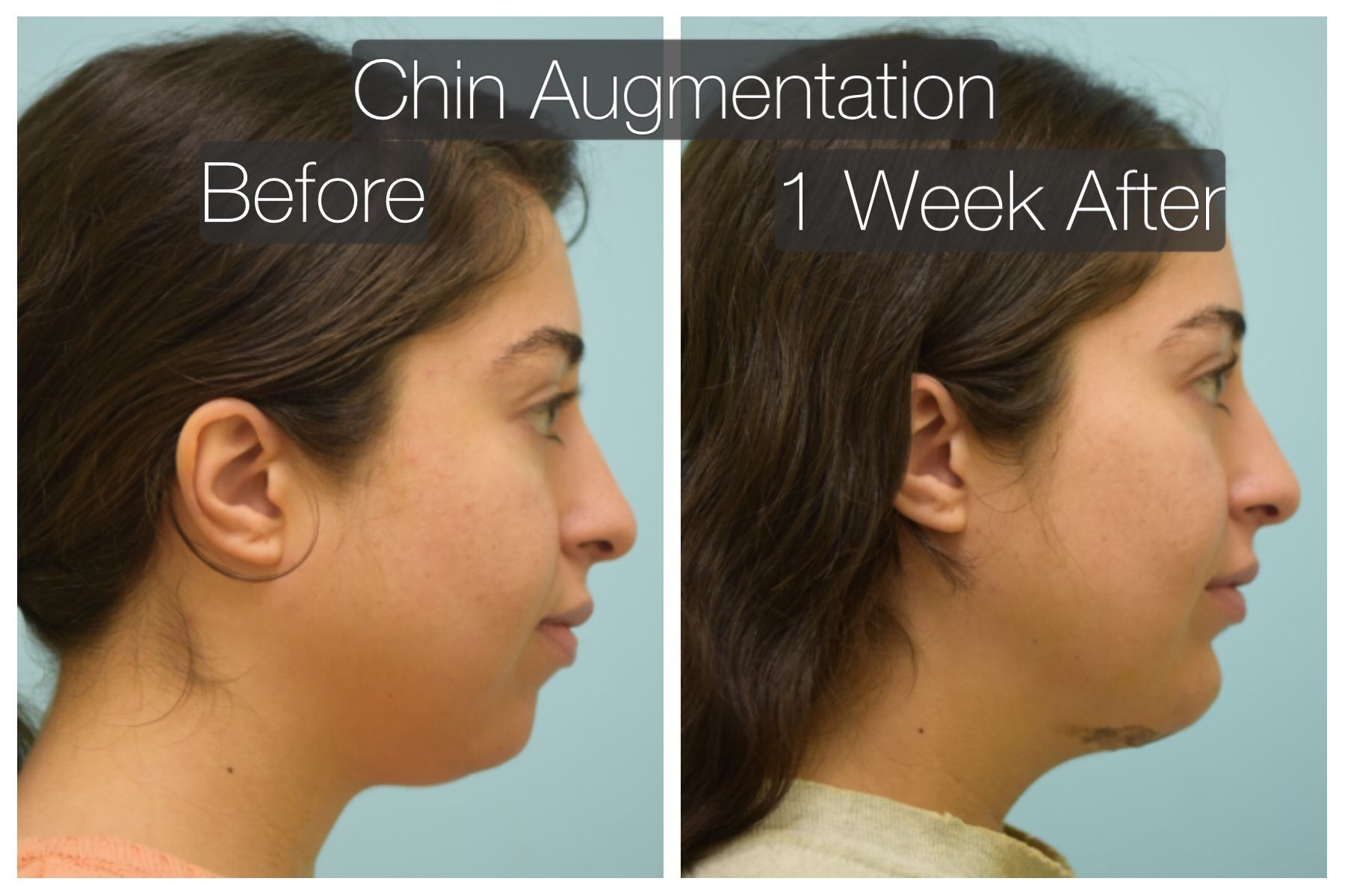This Woman Is Shown Before And 1 Week After A Chin Implant And Neck Liposuction Chin Implant Chin Augmentation Facial Implant