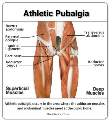 Sports Groin Injury Location Groin Injury Pinterest Muscles
