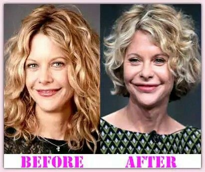 Meg Ryan Before And After Her Plastic Surgery Meg Ryan In 2019