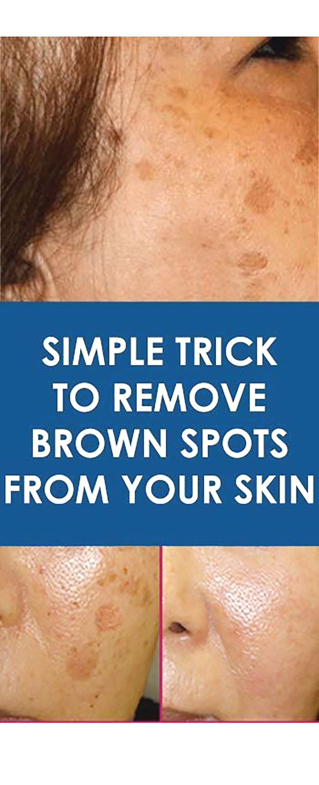 Simple Trick To Remove Brown Spots From Your Skin Brown Spots On Skin Spots On Face Brown Spots On Face