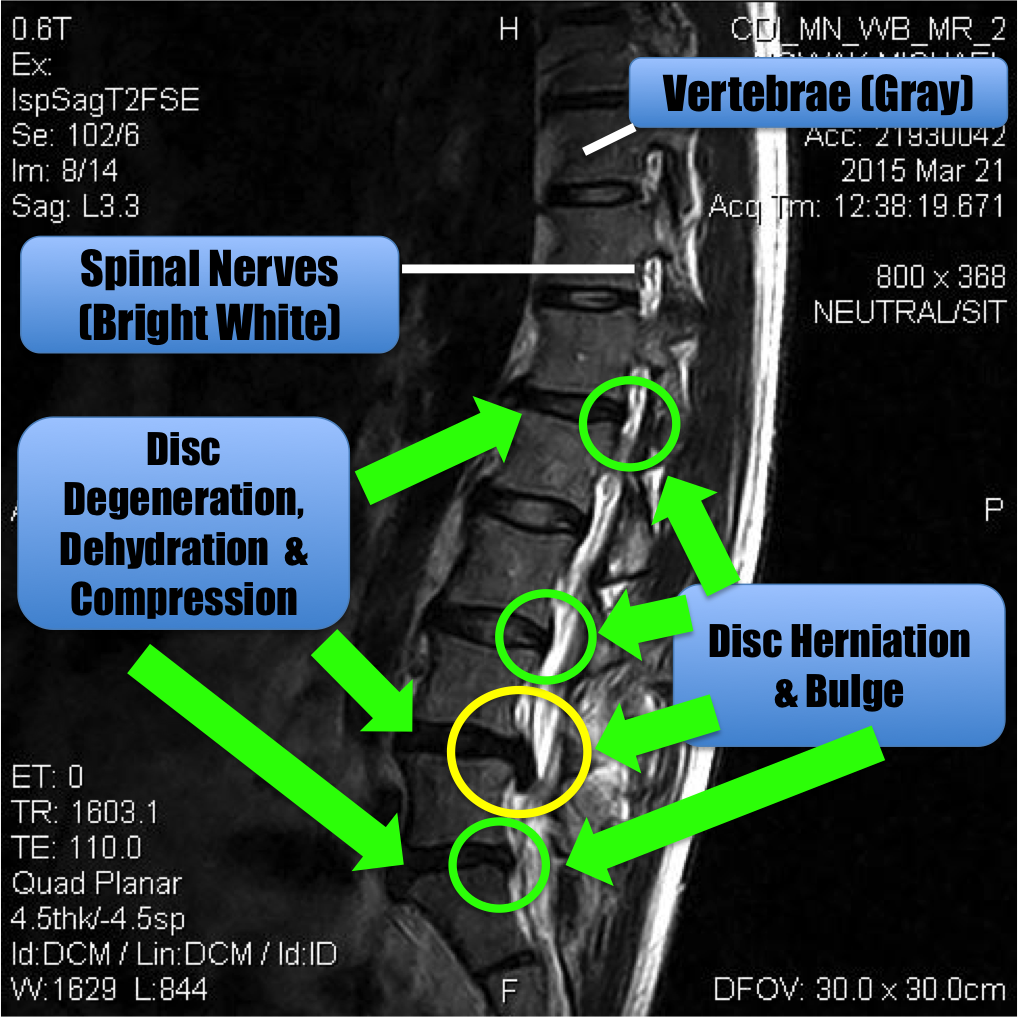 Power to Adapt and Overcome | Disk herniation, Cauda equina syndrome ...