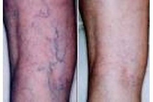 Spider veins are discolored veins similar to but less prominent than varicose veins. They can be treated in a variety of ways including at a doctor's office. However several folk remedies have a strong reputation for lessening or curing the appearance of veins without a costly doctor's visit. Apple cider vinegar has helped many people lessen... #homeopathy #homeopathy #bebe #doctoroffice Spider veins are discolored veins similar to but less prominent than varicose veins. They can be treated in a #doctoroffice