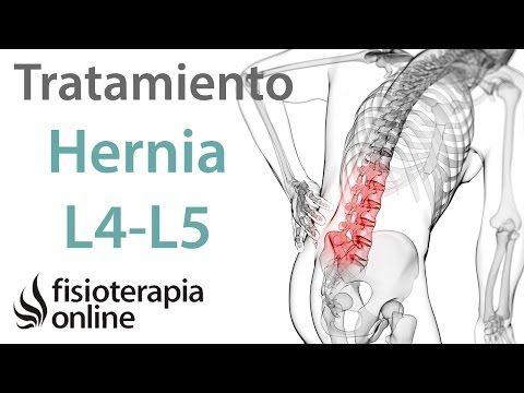 tratamiento para dolor de espalda baja
