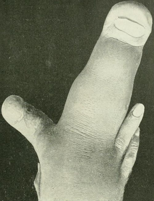 Elephantiasis Of The Middle Finger From Anomalies And