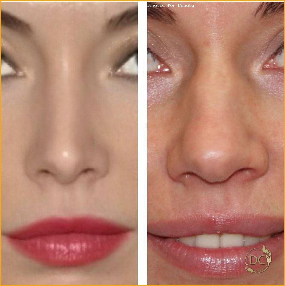 Nose Job To Fix Bulbous Nose » Rhinoplasty Cost, Pics