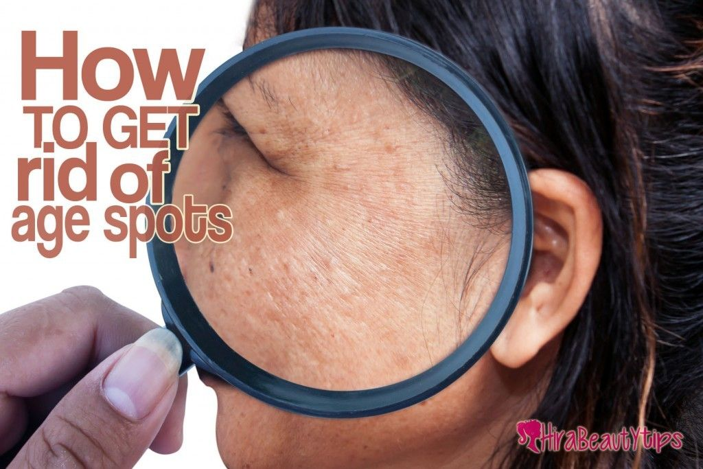 20 natural ways to get rid of age spots at home age